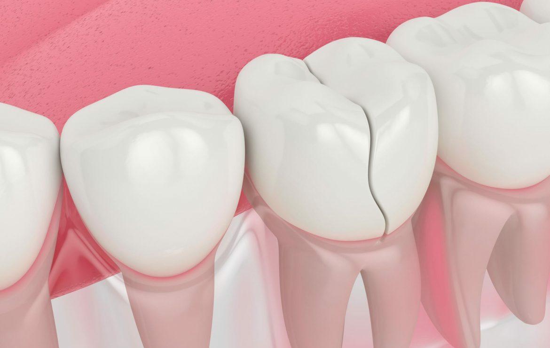 5 Dental Procedures to Repair Your Cracked or Broken Tooth