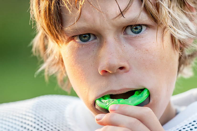 The Importance of Wearing a Mouth Guard