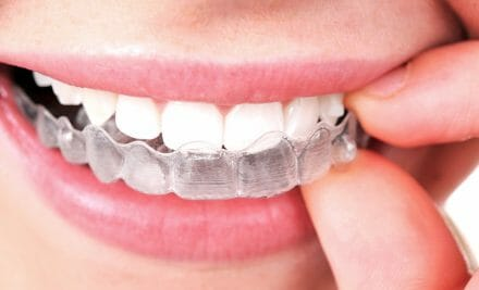 Invisalign is Finally Here: Everything You Need to Know!