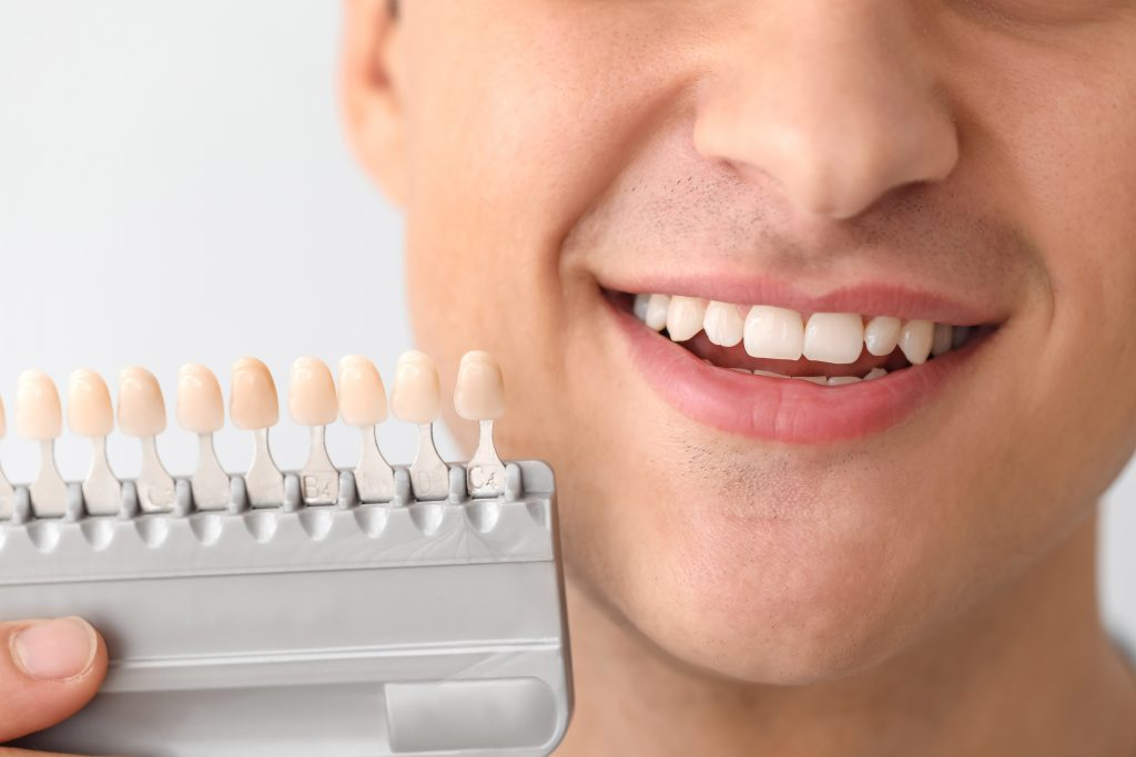 young man choosing dental crowns
