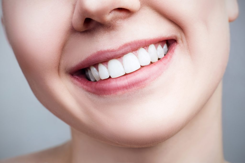 closeup of woman smiling with teeth