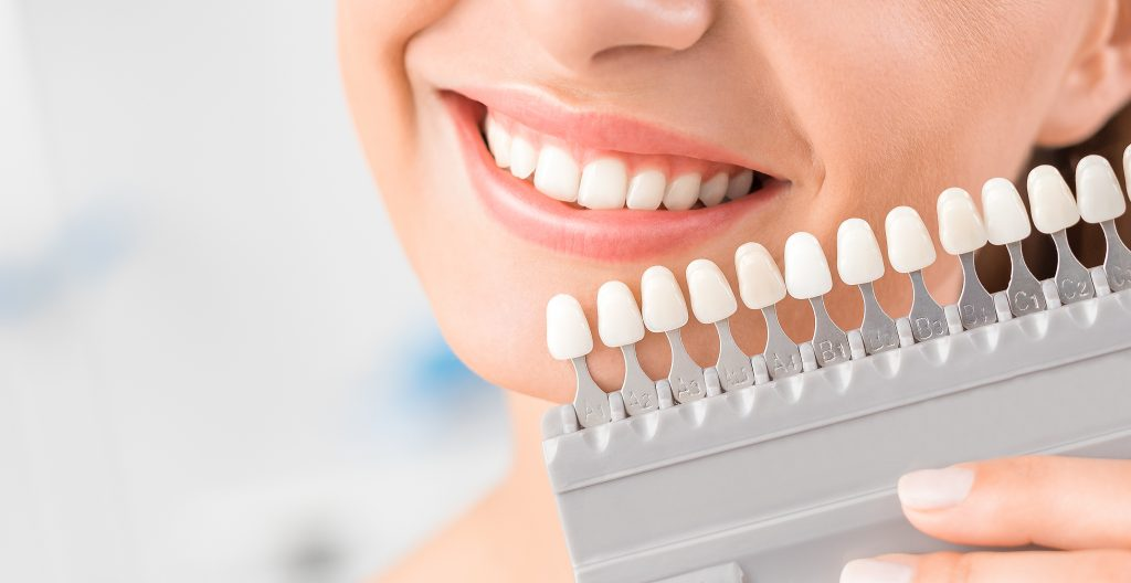 woman choosing shade of tooth whitening
