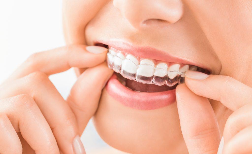 woman placing nightguard on her teeth