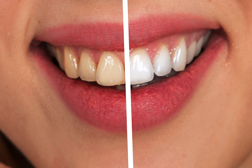 Teeth Whitening Info You Should Know