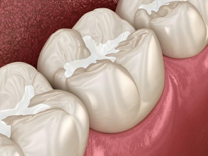 Do Dental Sealants Work?