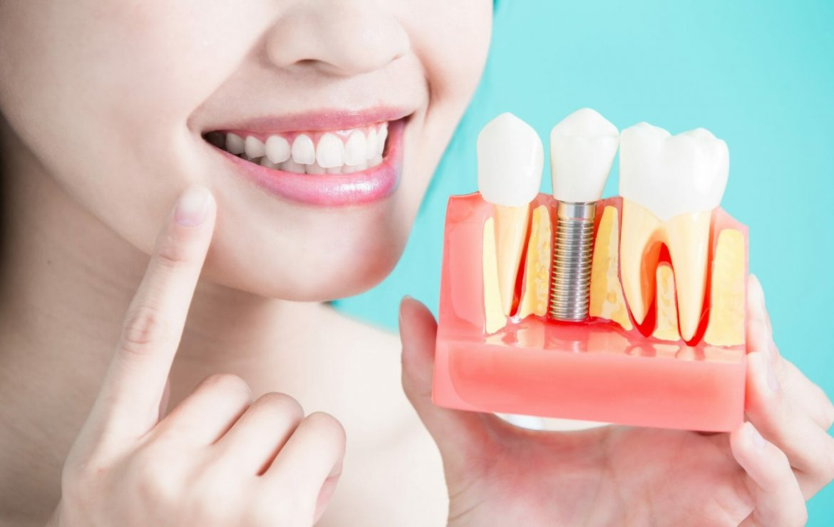 The Top 4 Benefits of Dental Implants