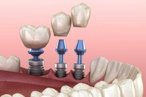 How Long Does It Take to Get Dental Implants?